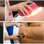 Application of Laser Therapy in Physiotherapy (Modern Physical Therapy)