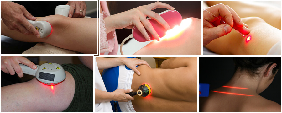 Application Of Laser Therapy In Physiotherapy Modern